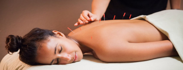 woman-getting-acupunctured